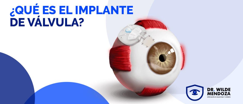 ¿Sabes de qué trata el implante de válvula en los ojos?