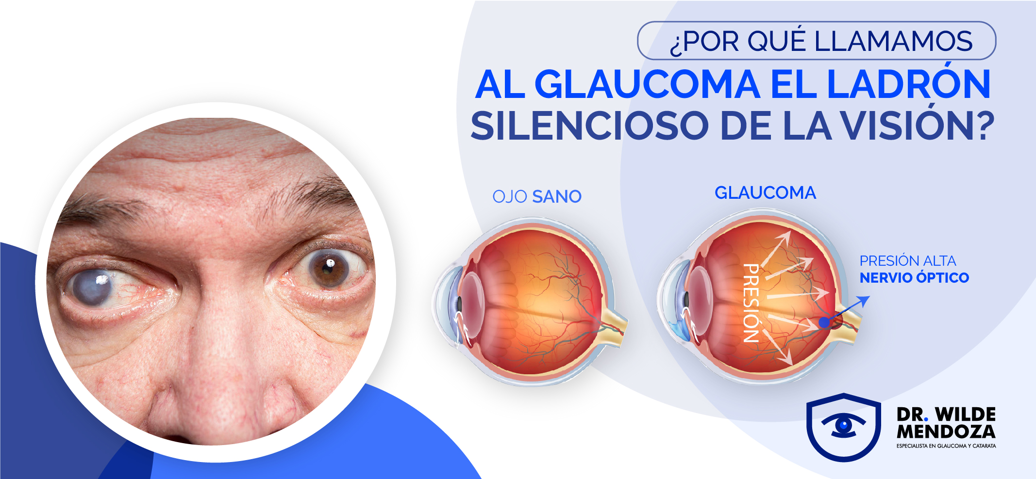 """Glaucoma: El """"Ladrón Silencioso de la Visión"""""""